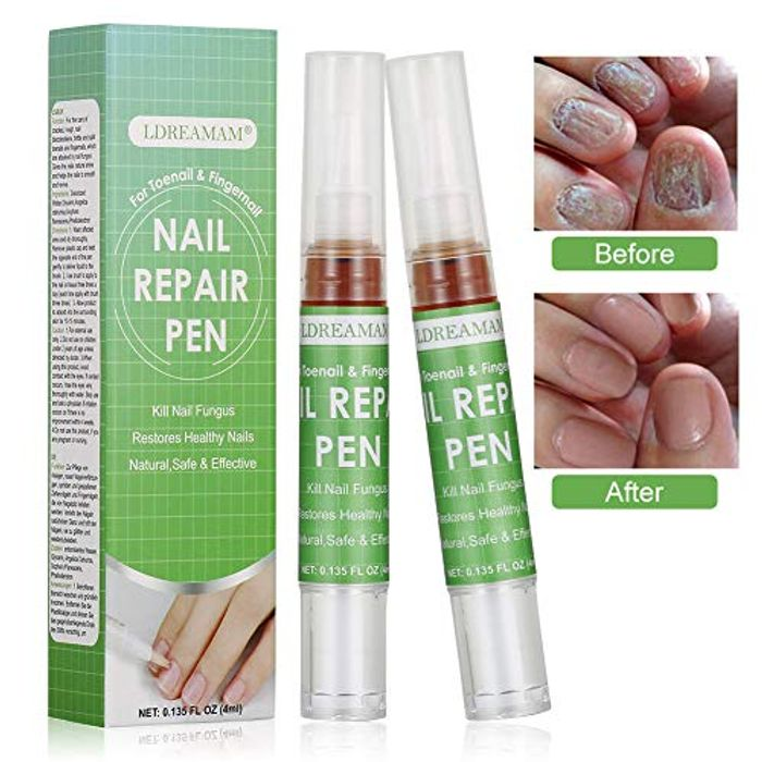 Anti Fungus Nail Treatment,Fungus Stop,Fungus Treatment